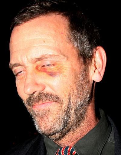 Hugh-Laurie-dr-house-occhio-nero