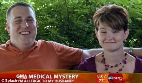 Mike-Julie-allergia-sperma-sposi-marito