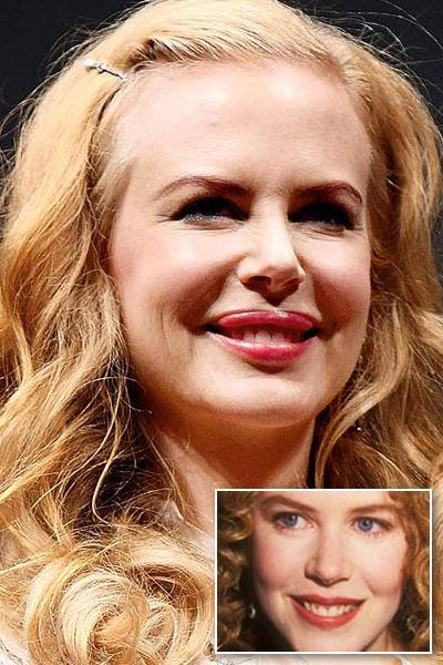 Nicole-Kidman-botox-chirurgia-estetica-foto-01