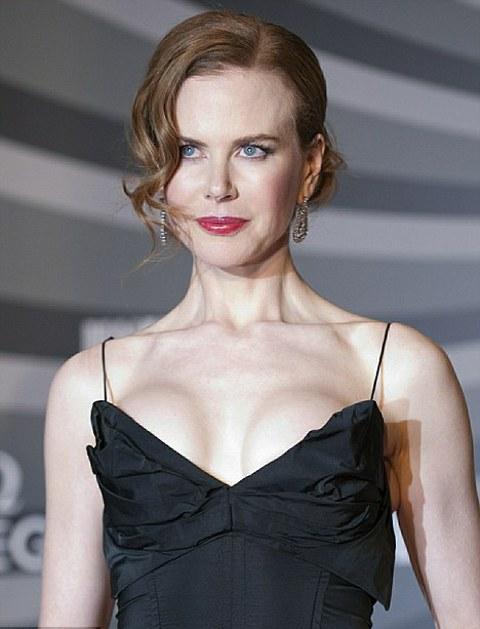 Nicole-Kidman-botox-chirurgia-estetica-foto-02