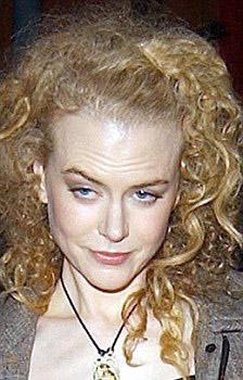 Nicole-Kidman-botulino-botox-foto-01