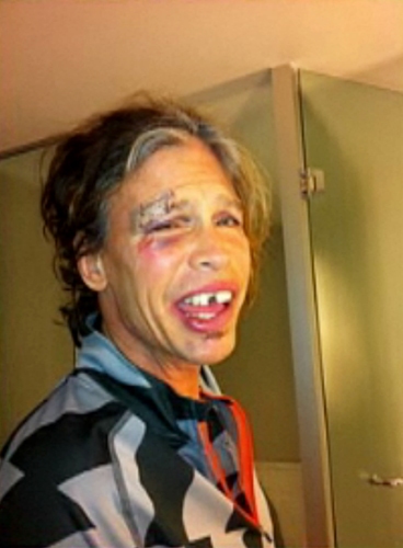 Steven-Tyler-Aerosmith-incidente-foto-01.jpg