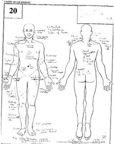 autopsia-michael-jackson-02