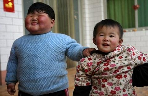bambino-cinese-obeso-record-01