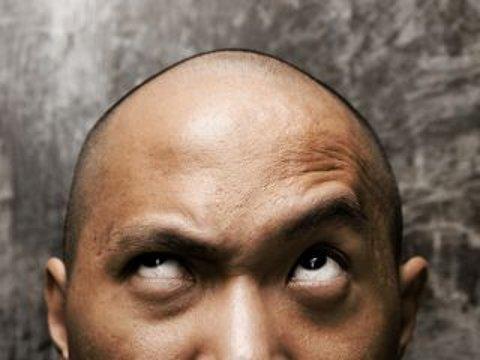 calvizie-cura-capelli-genetica-geni
