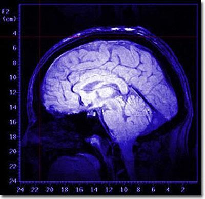 stato-vegetativo-cervello