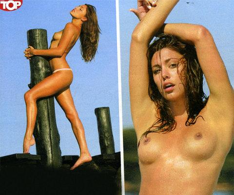 Belen-Rodriguez-prima-chirurgia-estetica