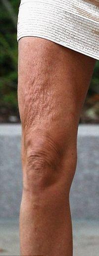 Elle-Macpherson-the-body-cellulite