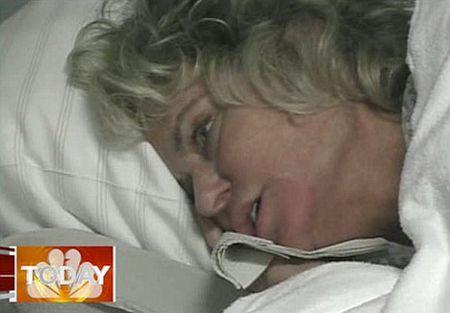 Farrah-Fawcett-cancro