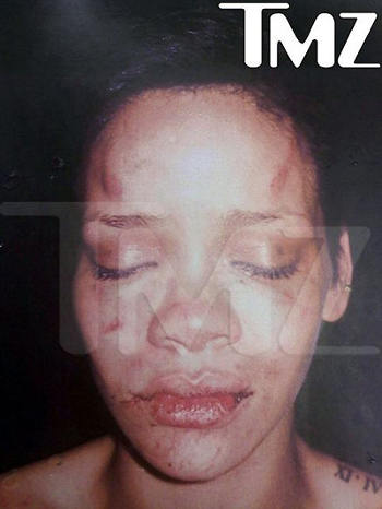 Rihanna-picchiata-da-chris-brown-