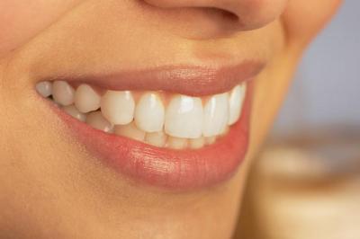 dentisti-prezzi-esorbitanti-costi-elevati