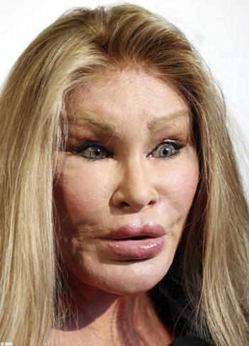 jocelyn-wildenstein-adesso