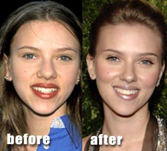 lips_nose_Scarlett-Johansson