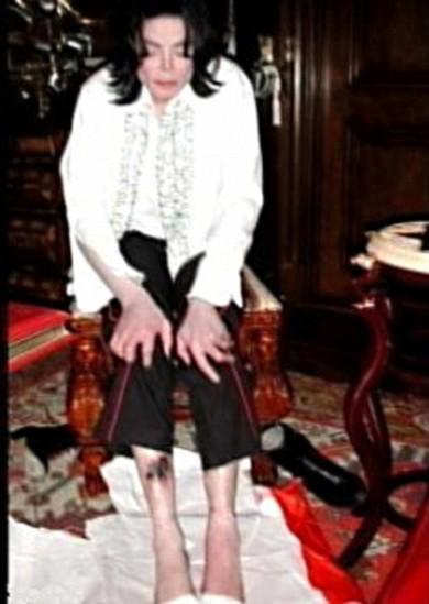 michael-jackson-gambe-sfregiate-foto