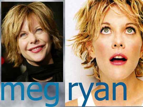 meg-ryan-prima-dopo-lifting-filler-chierurgia-estetica-faccia-di-gomma.jpg