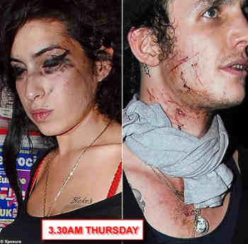 alcolismo-Amy-Winehouse-anoressia-depressione-droga-blake-fielder-civil